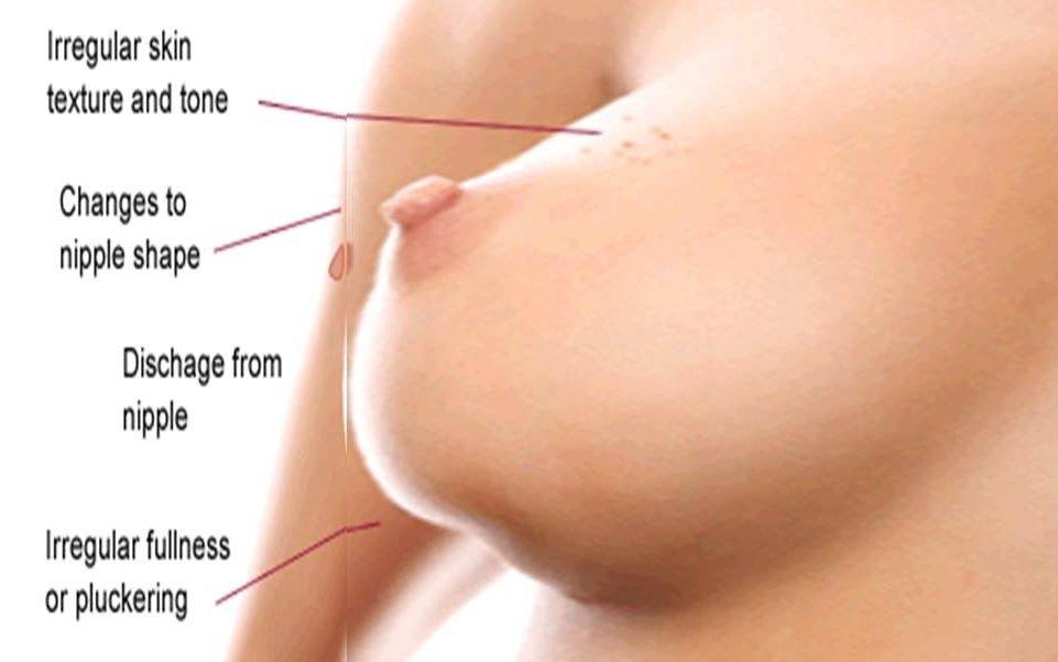 Girls from ecu nude
