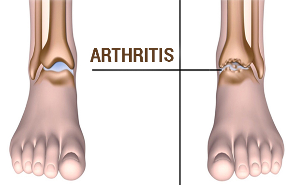 Foods that ease arthritis pain